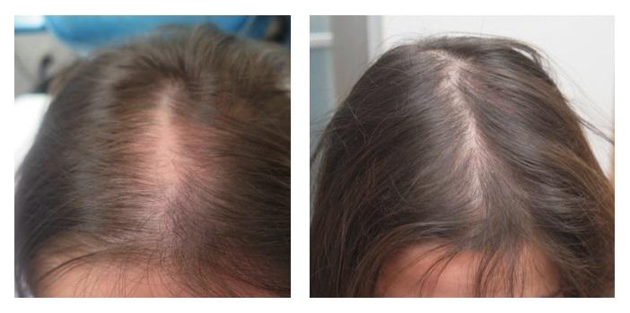 karboksyterapia na wypadanie włosów