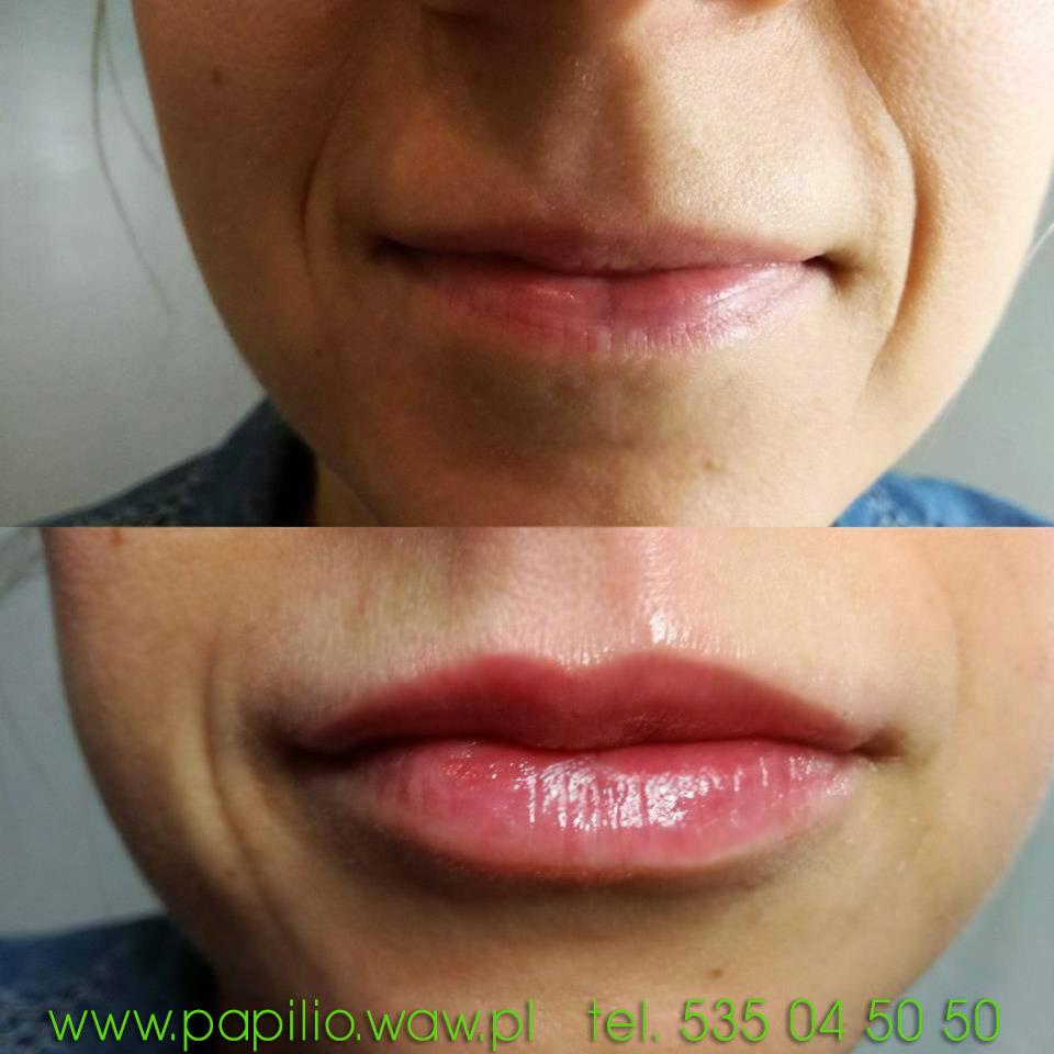 Powiększanie ust Ząbki Warszawa Zielonka kwas hialuronowy